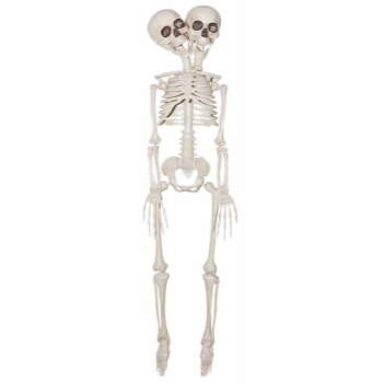 "Picture of 20"" TWO HEADED SKELETON"